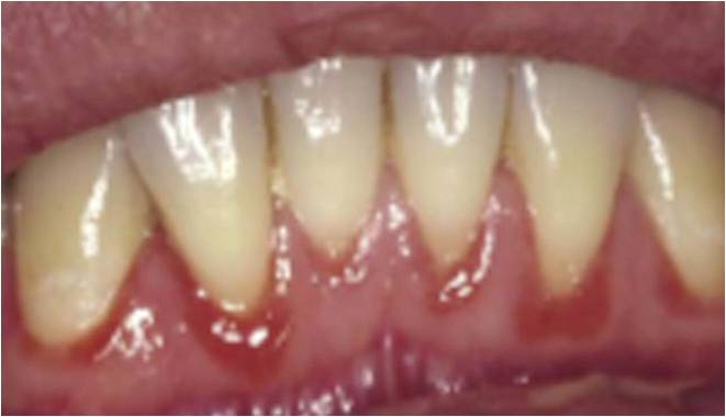 Tender and Swollen Gum