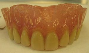 An Upper Complete Denture