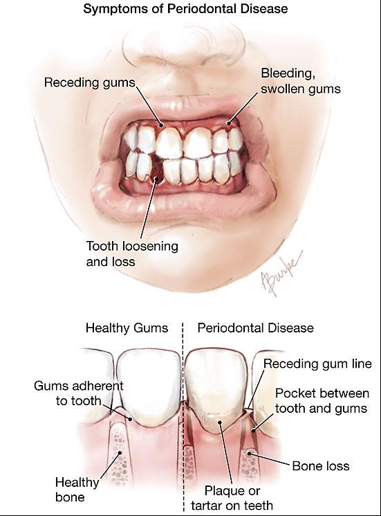 Symptoms of Periodontal Disease