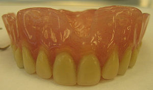 An Upper Complete Denture